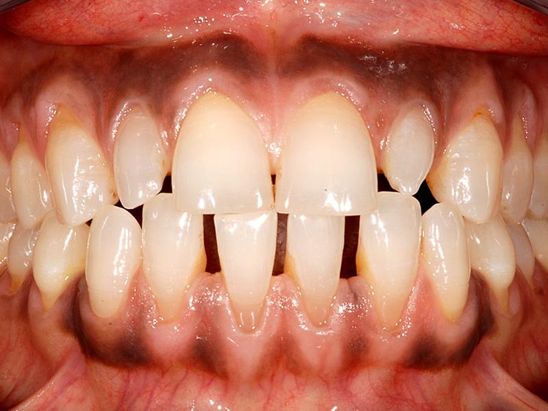 sthetische zahnheilkunde dr andreas stein zahnarzt oralchirurgie wiesbaden. Black Bedroom Furniture Sets. Home Design Ideas