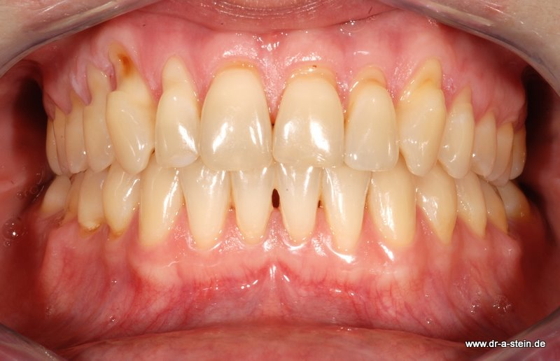 Rezessionen - Dr. Andreas Stein, Zahnarzt, Oralchirurgie