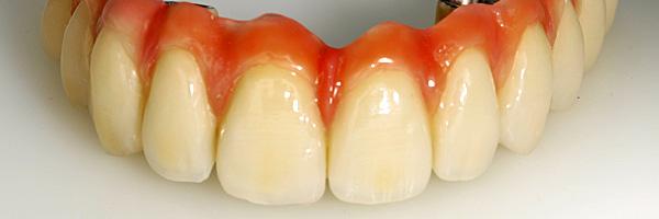 Ohne gaumenplatte zahnersatz Zahnprothese: Teilprothese,